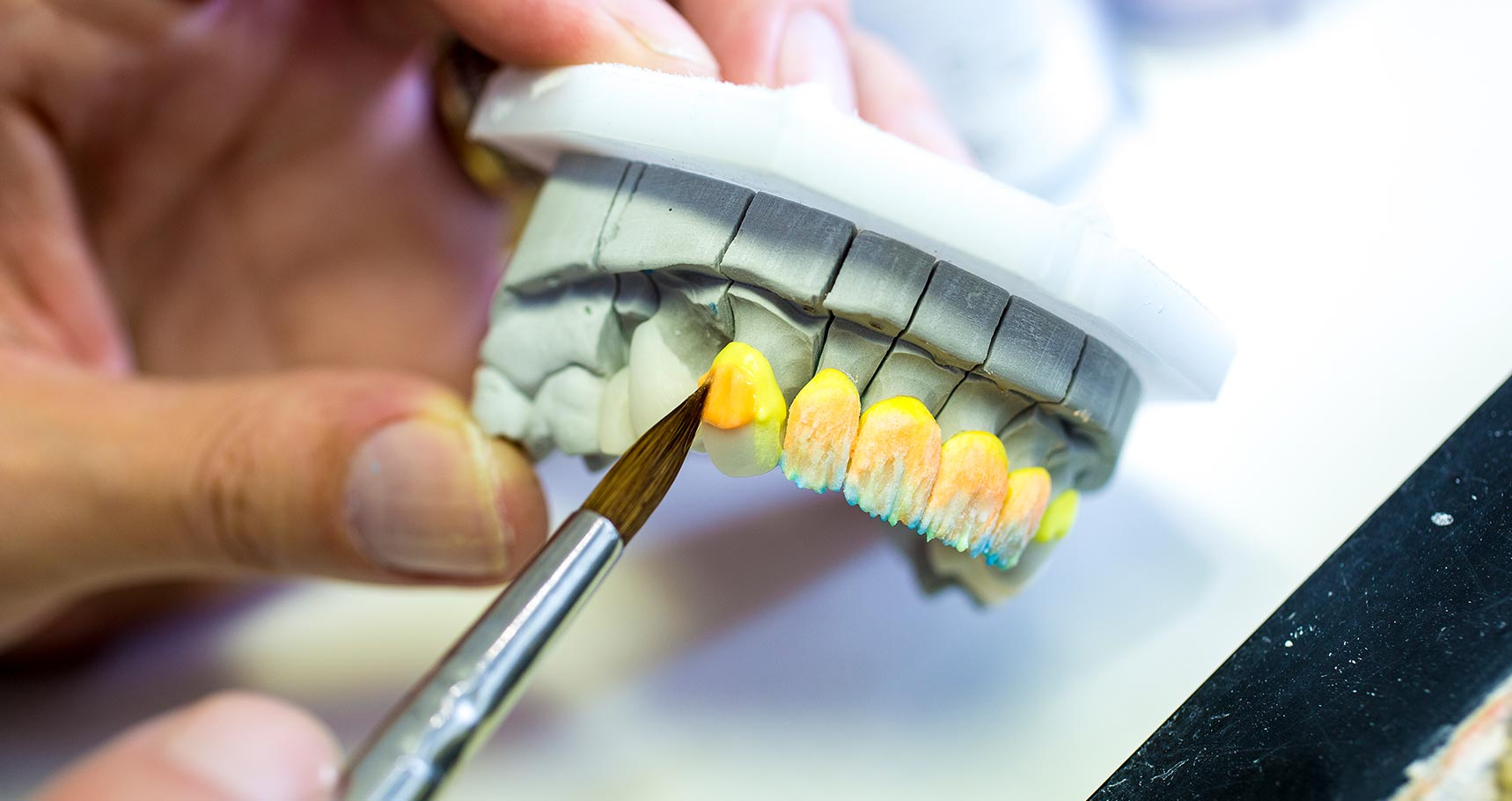 Hall Dental Studio | Manchester